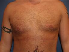 Front After Gynecomastia