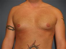 Front Before Gynecomastia