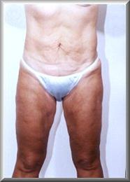 Front View After Liposuction