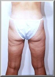 Rear View After Liposuction