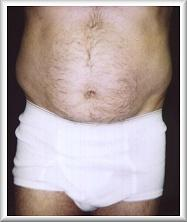 Front View Before Liposuction