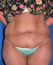 Front View Before Tummy Tuck