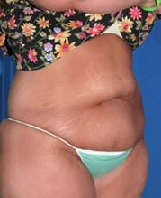 Before Abdominoplasty Oblique View