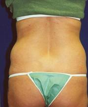 Rear View Before Liposuction