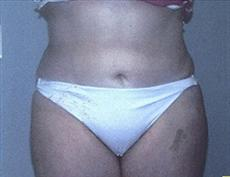 Front View After Liposuction & Mini Tummy Tuck
