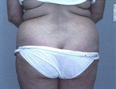 Rear View Before Liposuction & Mini Tummy Tuck