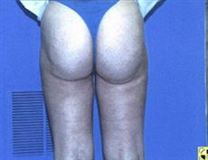 1500 CC Breast Implants http://www.liposite.com/photocenter/Liposuction-of-Thighs-and-Buttock-778.aspx