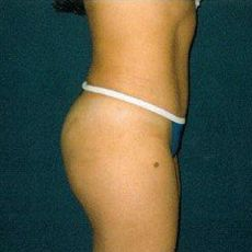 Tummy Tuck With Liposuction Before Amp After Photos Weston