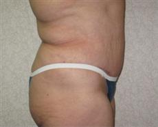 Side View After Abdominoplasty