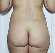 Rear before liposuction of the waist procedure