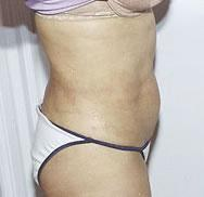 Side before liposuction of the waist procedure