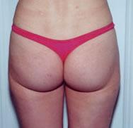 Rear after liposuction procedure