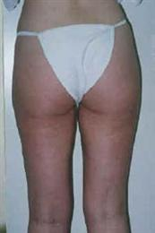 Rear After Tumescent Liposuction