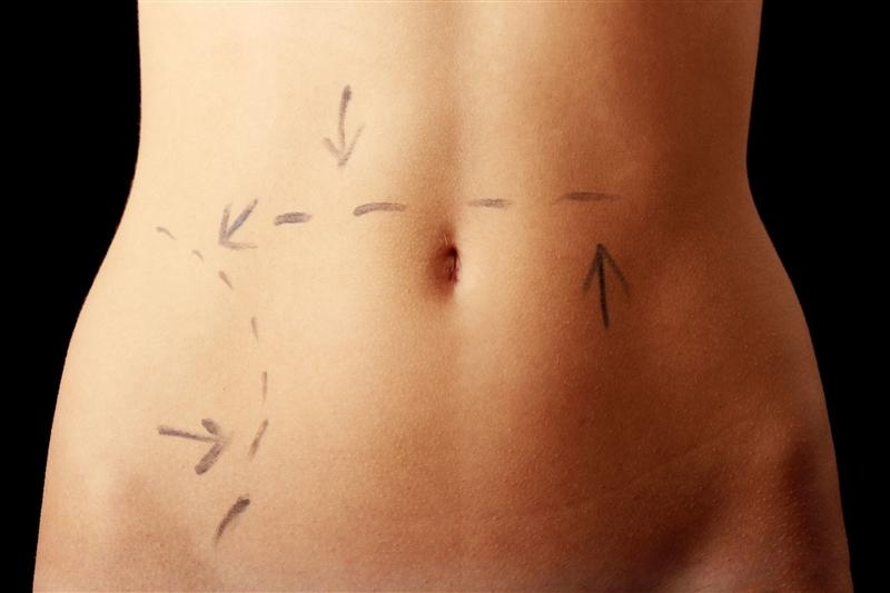 a study of liposuction Start studying chapter 19 - plastic and recontructive surgery learn vocabulary, terms, and more with flashcards, games, and other study tools.